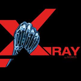 X-Ray de Rasmus